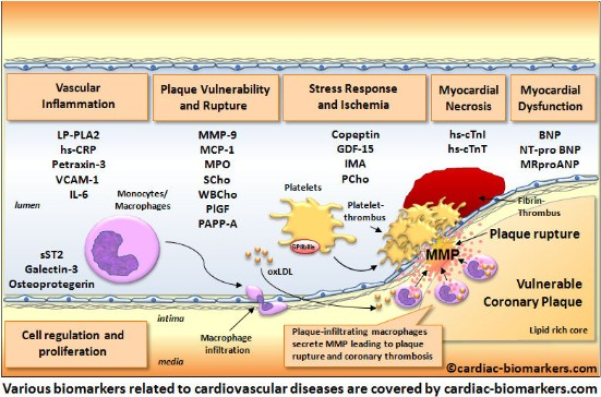 Cardiac biomarkers com the no 1 online reference cardiac biomarkers